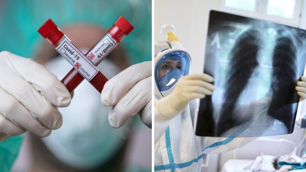 Разные степени поражения легких Ковидом: симптомы
